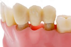 dental bridge1