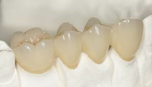 dental bridge3
